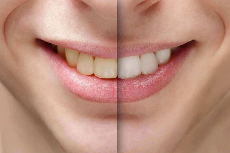 Bí kíp: Loại Bỏ Sâu Răng Và Làm Trắng Răng trong vòng 27 ngày